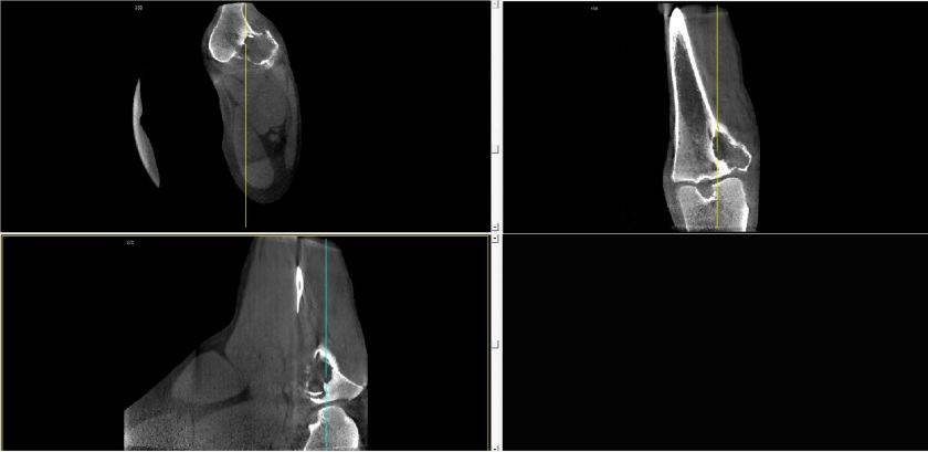 OsteoSarc CBCT MPR View